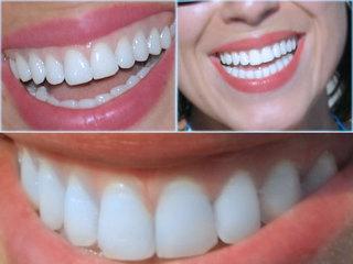 Hassas dişler için evde bakım