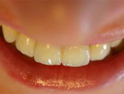Diş çürüklerinizin nedeni çocukluk hatalarınız değil..