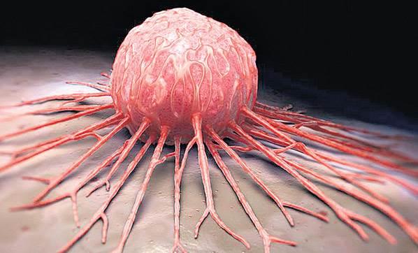 Kanser ölüm nedenleri içerisinde ikinci sırada