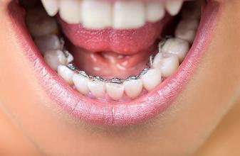 İçten Diş Teli Tedavisi