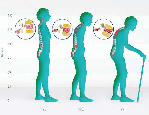 Erkeklerde Osteoporoz