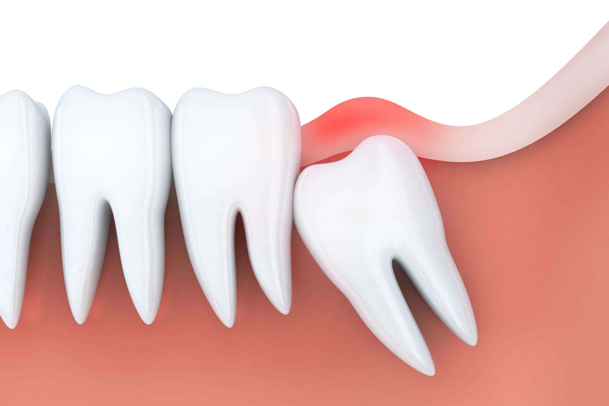 Yirmilik Diş Nedir? 20'lik Diş Çekimi Nasıl Olur?