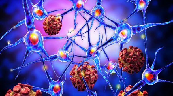 Otoimmün Hastalıklar Nedir? Otoimmün Hastalık Belirtileri ve Çeşitleri Nelerdir?