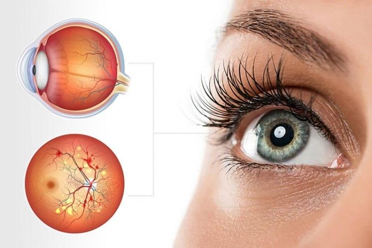 Retina Hastalıkları Nelerdir?
