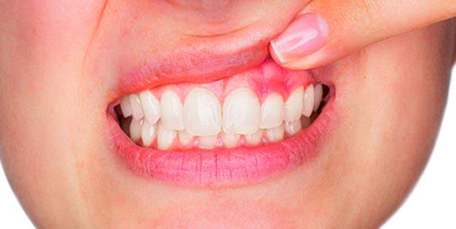 Diş Eti İltihaplanması Tedavisi