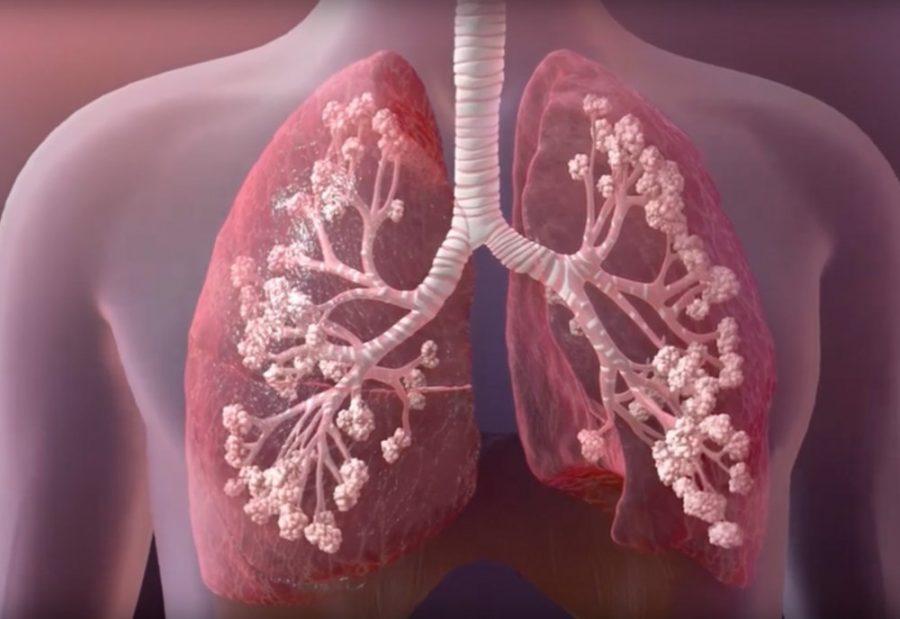 Kistik Fibrozis Nedir?