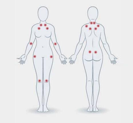 Fibromiyalji nedir? Belirtileri ve Tedavisi