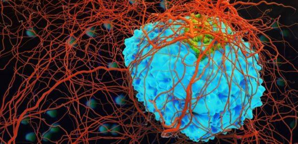 Vücutta Kanser Belirtileri Nelerdir?