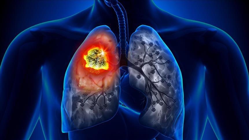 Ailesinde Akciğer Kanseri Olanlar İçin Risk 2.4 Kat Daha Fazla