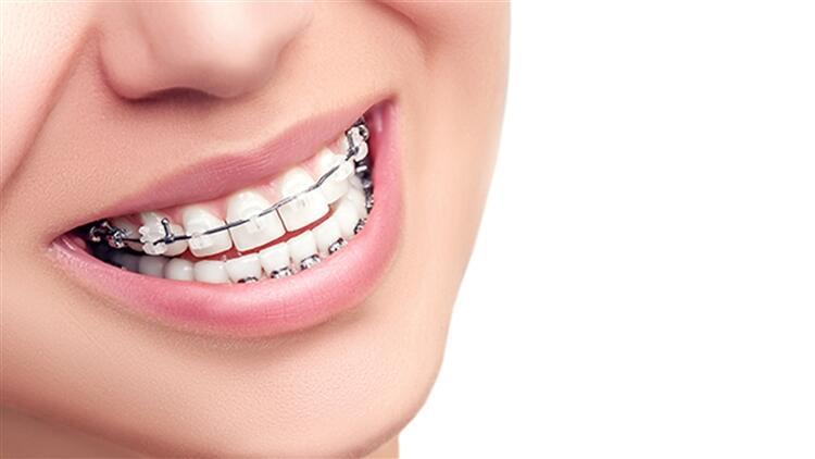 Diş Teli Tedavisi Hakkında Doğru Bilinen Yanlışlar