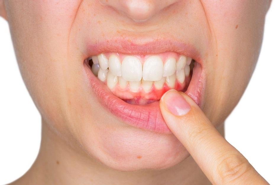 Diş Eti Çekilmesi (Periodontitis)