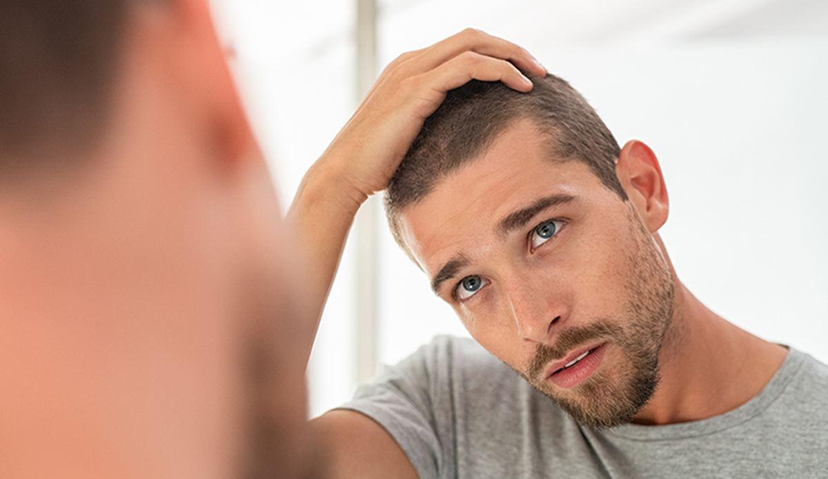 Yeni Başlayan Saç Kayıpları Ertelenebilir!