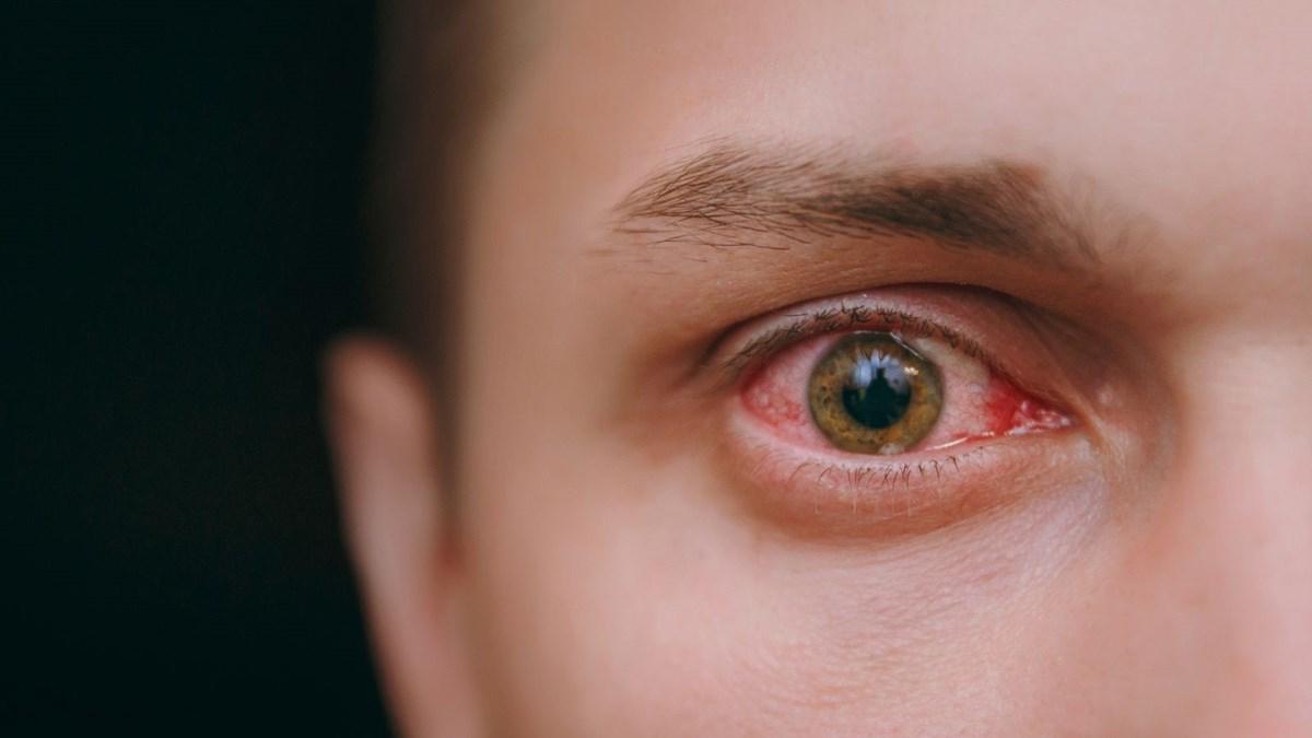 Göz kızarıklığı Covid-19 işareti mi?