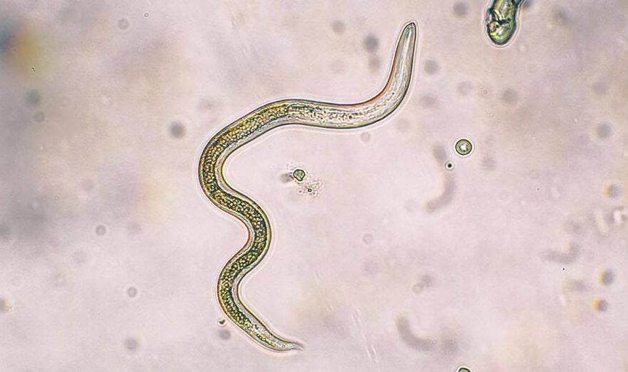 parazit enfeksiyonu