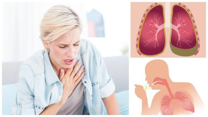 Plevral Efüzyon (Akciğerde Sıvı Birikmesi)